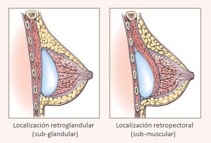 Маммопластика грудь твердая у меня