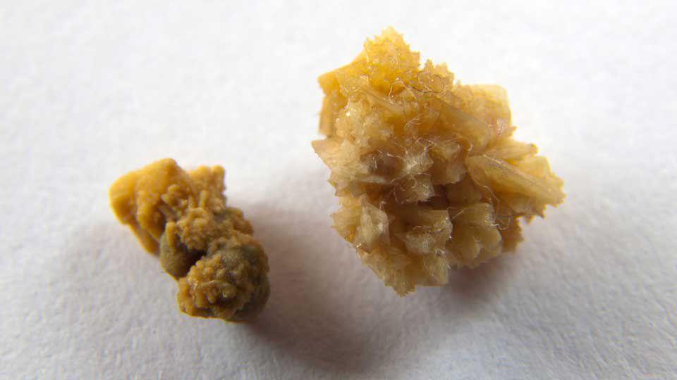 eliminar de manera natural las piedras en los riñones