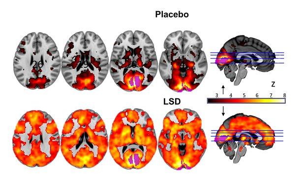 En la gráfica se puede observar los efectos que produce el LSD  cerebro humano enfocado en funciones de la vista, el movimiento, el oído y la capacidad de atención.