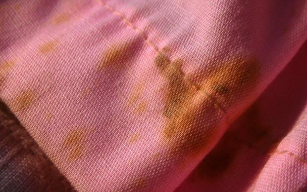 vinagre-blanco-manchas-ropa