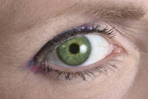 8 colores de ojos más extraños del mundo