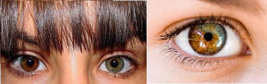 heterocromia-ojos