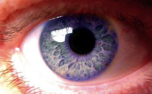 ojos-violetas