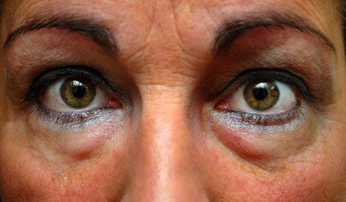 Bolsas-ojos
