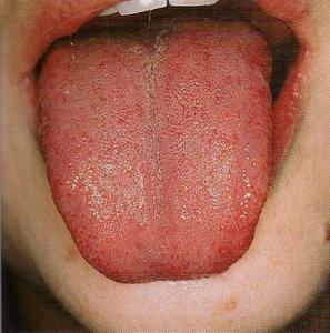 lengua-roja