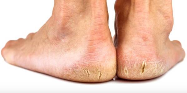 Vick Vaporub grietas en los pies