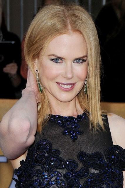 Nicole Kidman: Lo del botox fue un error
