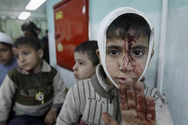 Gaza: niño herido